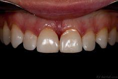 """Zubní výplně (záchovná stomatologie) - Miniinvazivní dostavba diastematu (rušivé mezírky mezi velkými řezáky). V rámci sanace malých kazů na vnitřních ploškách obou zubů jsme po domluvě s pacientem přistoupili i k estetické dostavbě mezírky z fotokompozitního materiálu. Mimo odstranění kazu tak nebylo do zubu """"vrtnuto"""". Vše zhotoveno z plastických výplňových materiálů přímo v ústech pacienta."""