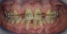 DentEye - zubní a oční ambulance - jednoduché zavedení a vylepšení retence  snímatelné náhrady. Terapie s Keratory
