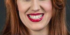 Zubní implantáty - Vizualizace Vašeho nového úsměvu - abychom Vám mohli změnu Vašeho úsměvu dopředu ukázat, máme na klinice malé fotostudio, kde Vás vyfotíme, a do několika minut Vám pomocí speciálního počítačového programu navrhneme nový úsměv.