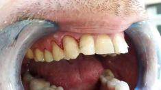 Augmentační techniky v parodontologii a implantologii - fotka před