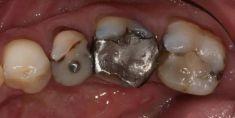 Zubní výplně (záchovná stomatologie) - sanace zubu + kompozitní výplně