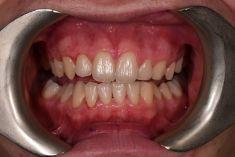 MUDr. Richard Benko - Na fotografii před obarveno detektorem zubního plaku, díky kterému je vidět, kde pacient chrup špatně čistí.  Archiv: RB dent - MUDr. Richard Benko