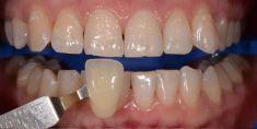 RB Dent - centrum komplexní stomatologie - Ordinační bělení zubů Philips ZOOM, stav před a po. Archiv: RB dent - MUDr. Richard Benko