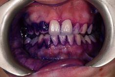 RB Dent - centrum komplexní stomatologie - Na fotografii před obarveno detektorem zubního plaku, díky kterému je vidět, kde pacient chrup špatně čistí. Archiv: RB dent - MUDr. Richard Benko