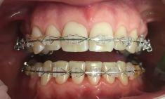RB Dent - centrum komplexní stomatologie - Zubní hygiena u pacienta s rovnátky, GBT (guided biofilm therapy).  Archiv: RB dent - MUDr. Richard Benko