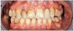 BioDent-tur s.r.o. - 3D plánovaní. Zhotovení chirurgické šablony. Extrakce zubů 12,11,22 zavedení implantátů. Provizorní můstek. Kostní plastika a plastika dásní. 3D modelace. Zhotovení a fixace zirkonových korunek a keramických fazet.