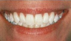 Bělení zubů - fotka před