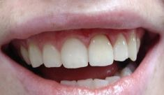 Keramické fazety - fotka před - Privátní zubní ordinace