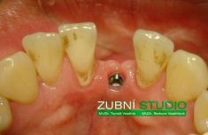 Zubní implantáty - fotka před - Privátní zubní ordinace