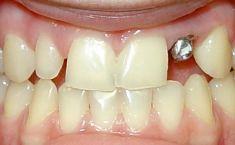 Keramické korunky a můstky - fotka před - Privátní zubní ordinace