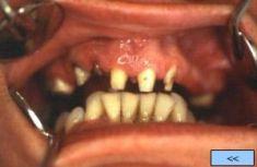 Zubní implantáty - fotka před - Centrum estetické stomatologie ARIES s.r.o.