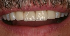D.C.M. soukromá stomatologická klinika - fotka před - D.C.M. soukromá stomatologická klinika