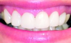 EsthetX - klinika estetické stomatologie - fotka před - EsthetX - klinika estetické stomatologie