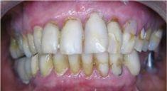 Studio 32 - soukromá zubní klinika - fotka před - Studio 32 - soukromá zubní klinika