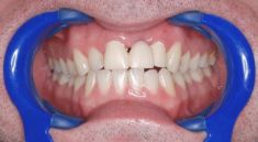 Dentální hygiena - fotka před - Dental Office H33