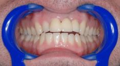 Keramické korunky a můstky - fotka před - Dental Office H33