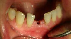 Zubní implantáty - fotka před - Dental Office H33