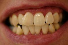 Bělení zubů - fotka před - DENT MEDICO, zubní klinika
