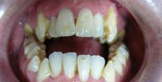 Ortodoncie - fotka před - MUDr. Hana Tycová