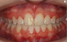 Ortodoncie - fotka před - Ortovia s.r.o.