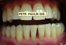 Léčba paradentózy (parodontologie) - fotka před
