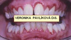 Dentální hygiena - fotka před - Dentální hygienistka Veronika Pavlíková DiS.