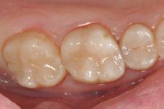 Zubní výplně (záchovná stomatologie) - fotka před - MUDr. Dimitrij Tkalych