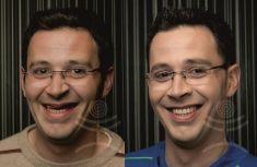 Protézy (celkové, částečné snímatelné náhrady) - fotka před - Mediestetik, skupina klinik