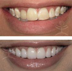 Bělení zubů - fotka před - Mediestetik, skupina klinik