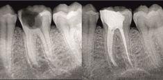 Endodoncie (ošetření kořenových kanálků) - fotka před - Mediestetik, skupina klinik