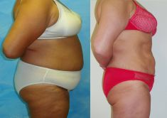 Liposukce celého břicha - Hubnutí břicha, úbytek 35 cm po 8 měsících.