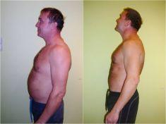 Liposukce celého břicha - Hubnutí kombinací procedur, 15 cm za 4 týdny