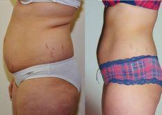Liposukce celého břicha - Hubnutí týden před svatbou