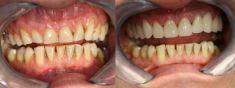 Dentální centrum - MUDr. Rafael Chajrušev - fotka před - Dentální centrum - MUDr. Rafael Chajrušev