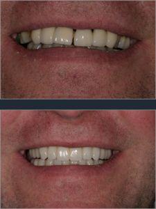 Zirkonové (celokeramické) implantáty - fotka před - BioDent-tur s.r.o.