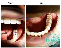 Zubní výplně (záchovná stomatologie) - fotka před - MDDr. Ondřej Klika