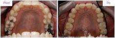 Zubní výplně (záchovná stomatologie) - fotka před - MUDr. Martin Kittler