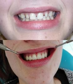 Keramické korunky a můstky - Pacientka měla malé drobné zuby daleko od sebe, což nešlo srovnat rovnátky. MUDr. Janega vyřešil korunkami a fazetami.