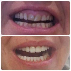 MDDr. Ondřej Klika - Klientka ma 14 novych fazet a korunek na hornich a dolnich zubech