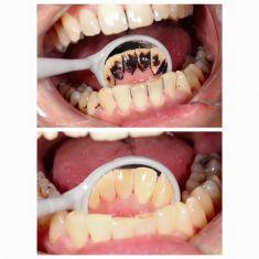 Dentální hygiena - fotka před - THE CLINIC