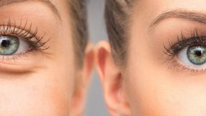 Kdy a komu pomůže operace očních víček (blefaroplastika)?