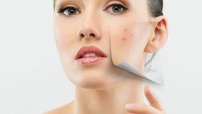 3 tipy, jak se zbavit akné v dospělosti