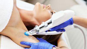 Trendem v efektivním odstraňování nadměrného pocení je botolutoxin i laser