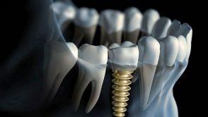Ztráta zubu není pro moderní stomatologii žádný problém