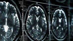 Cévní mozková příhoda: příznaky a léčba mrtvice