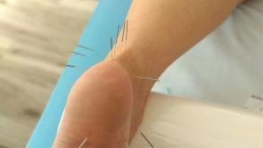 Léčba suchou jehlou - Dry Needling