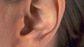 Terapie poruch sluchu