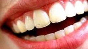 Dentální hygiena, součást preventivní péče o Váš chrup