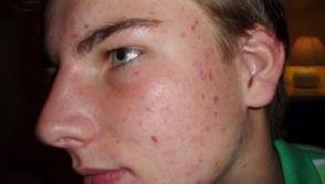 Akné - kožní problém nejen mladistvé pleti