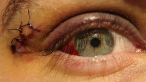 Úrazy oka